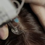 mesotherapie du cuir chevelu - Centre Laser Beauté Médical - Thiais